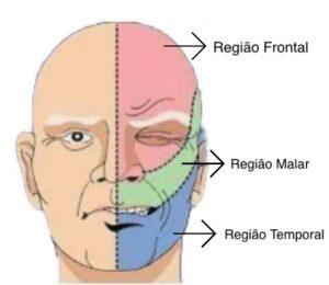 A dor provocada pela neuralgia do trigêmeo se distribui de acordo com o ramo do nervo afetado.